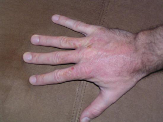 poison oak rash pictures. poison oak rash